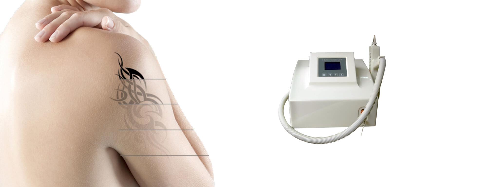 Laser Emay Q-Switch - Minas Laser Locações - Lavras MG